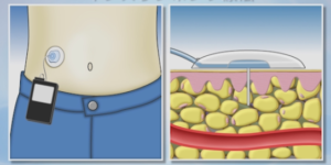 糖尿病のインスリンポンプー画像